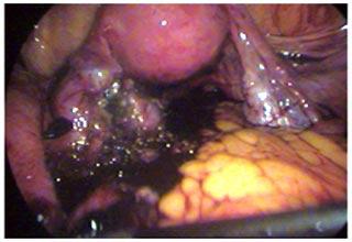 laparoscopy family planning surgery